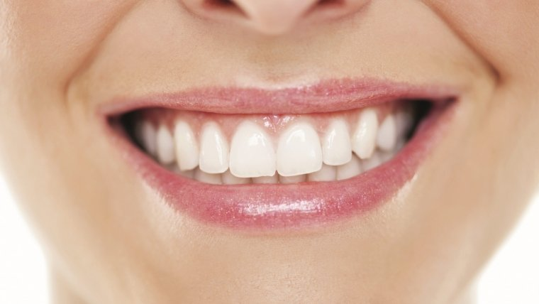 Sbiancamento dentale: l'estetica moderna nei rapporti sociali.