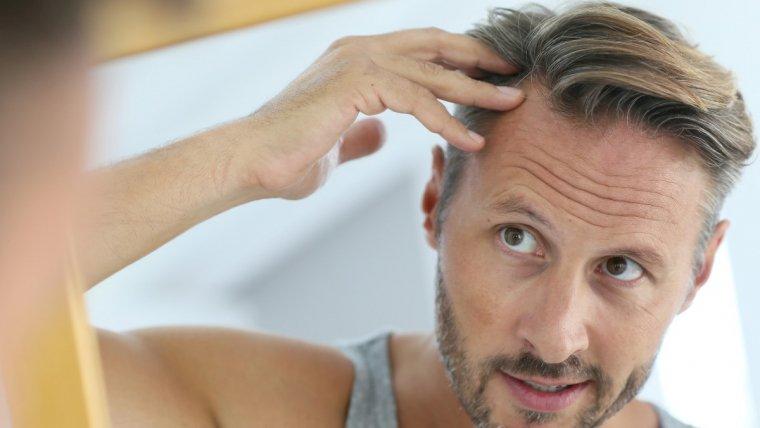 Perdita dei capelli: ferma la calvizie con il trattamento Rigenera Hair
