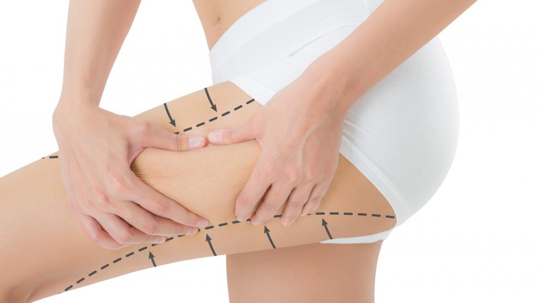 Tutto quello che devi sapere sulla liposuzione