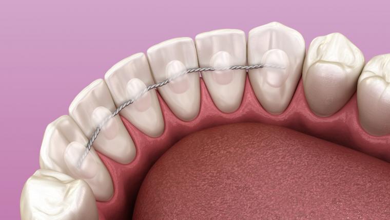 Splintaggio dentale